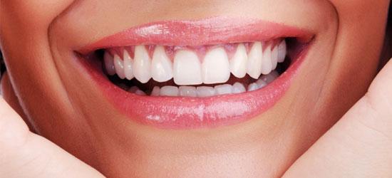 Dental Implants (Full Jaw) All-on-4